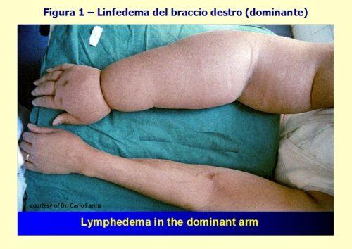 Il linfedema del braccio dominante compromette l'autonomia della donna perfino nelle più semplici attività quotidiane. Può provocare dolore e sfigura l'immagine corporea e la percezione di sé.